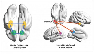 The human medial (reward-related, OFC13) and lateral (non-reward-related, OFC47/12) orbitofrontal cortex networks that show different functional connectivity in patients with depression.
