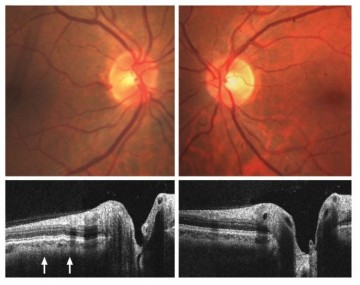 Before-and-after images of an astronaut's eyes via spectral domain optical coherence tomography show choroidal folds (marked by arrows), which are similar to stretch marks.