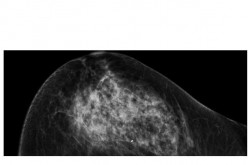 This mammogram depicts breast bearing malignant tumor.