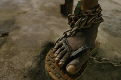A patient's foot is chained at a Liberian mental facility Aug. 28, 2003 in Monrovia, Liberia.