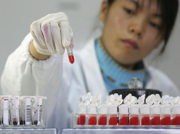 A worker performs a CD4 HIV test at a lab of Shanghai Xuhui District Central Hospital on Dec. 6, 2006, in Shanghai, China.
