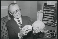 Dr. Robert Jastrow holds models of man's brain, showing its smaller size of 2 million years ago and the modern brain.
