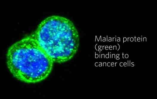 Malaria Protein (green) and Cancer Cells