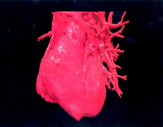 Three Dimensional (3 D Image Displays A Computerised Visualization Of A Human Heart